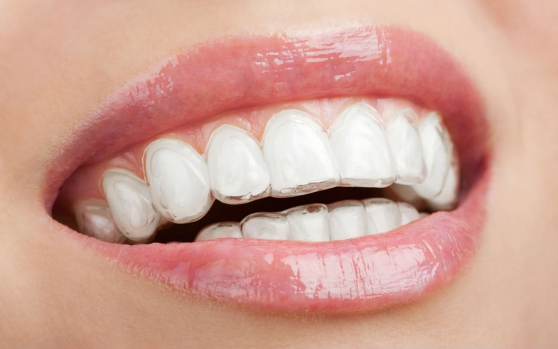 What is Invisalign?  How Does it Work? And is it Right for You?