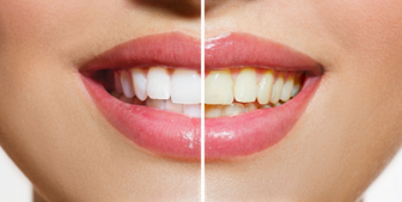 Why You Need a Cosmetic Dentist for Teeth Whitening
